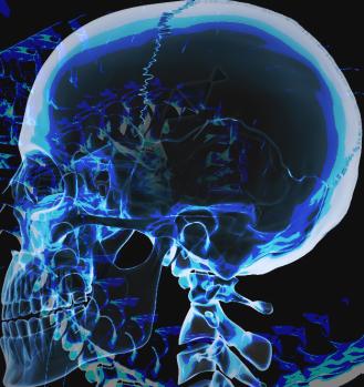 blu1llusiona-skull-x-ray